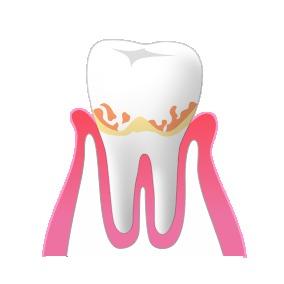 1軽度歯周病