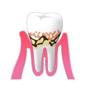 2中度歯周病