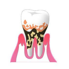 3重度歯周病
